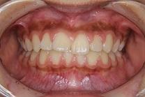 上顎前突2治療前 正面