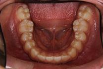 上顎前突2治療前 下顎咬合面