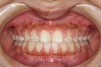上顎前突2治療後 正面
