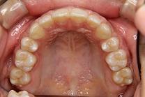 上顎前突2治療後 上顎咬合面