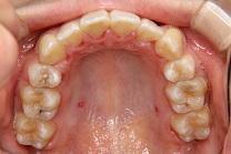 叢生7治療後 上顎咬合面